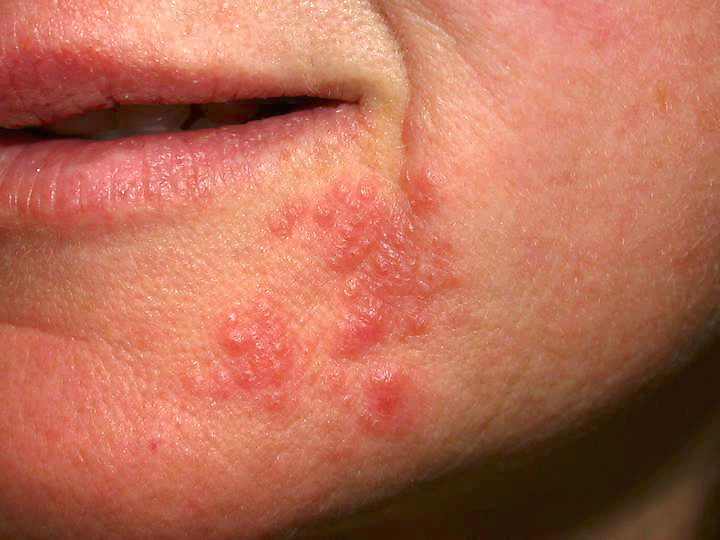 Baby Acne: Symptoms, Causes & Treatments - Momtastic