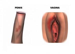 herpes penis og skede