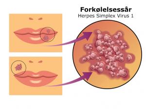grafik forkølelsessår herpes simplex virus