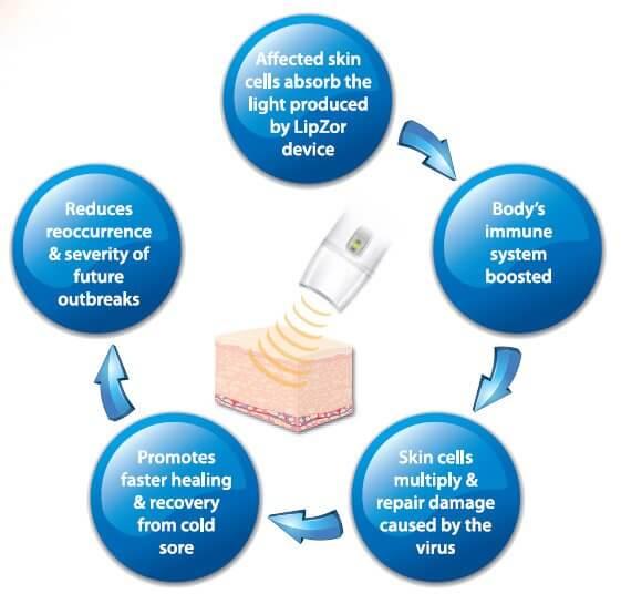 lipzor laser virkning cyklus